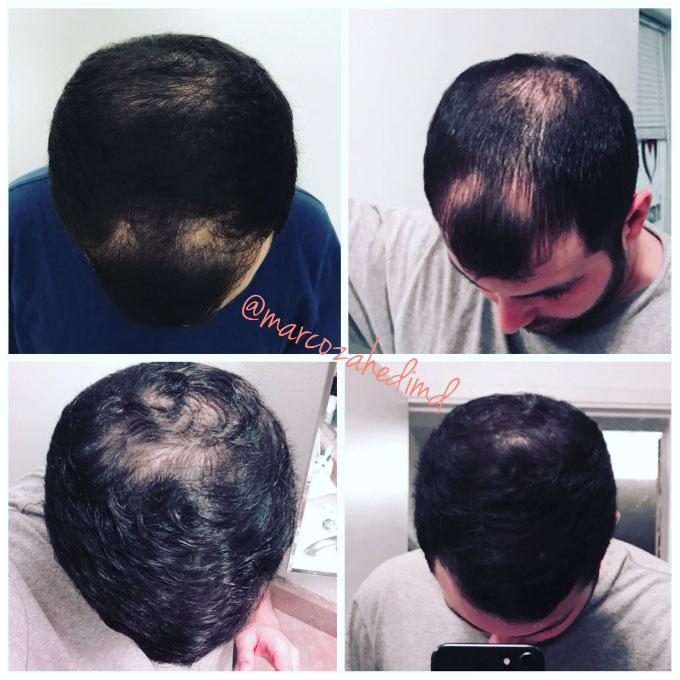 hair_restoration_2A